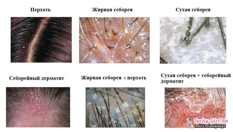 Как определить сухие или жирные волосы волосами используются