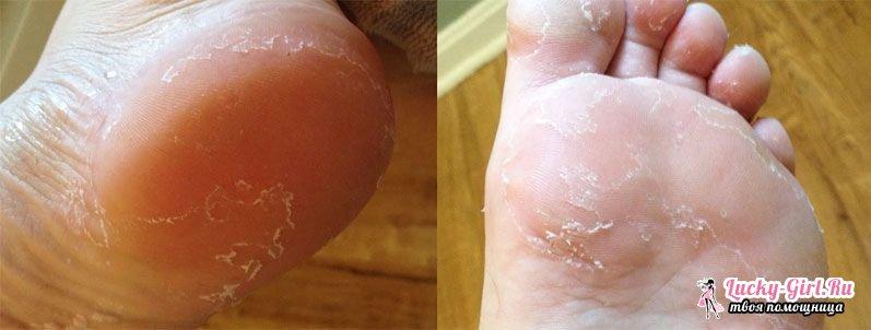 Лопается кожа на ступнях ног причины коже стоп ног