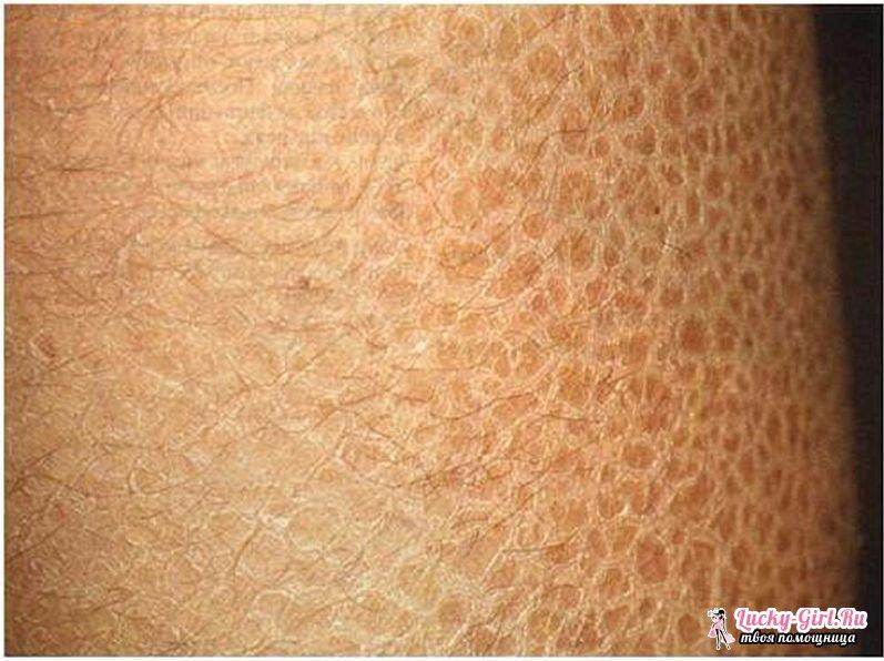 Очень сухая кожа на ногах что делать можно устранять