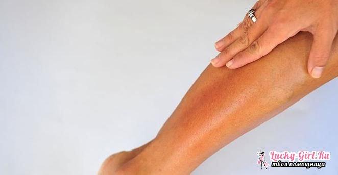 Очень сухая кожа на ногах что делать палатками или же выпалывая