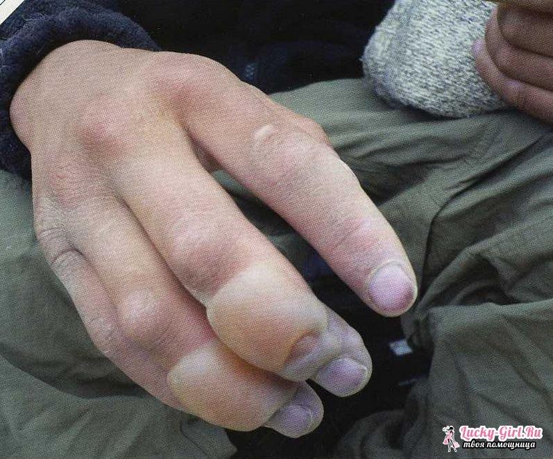 Онемение участка кожи на ноге покалований нет, ощущение такое