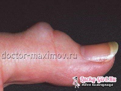Уплотнение на пальце ноги под кожей от нормы лечат путем операции