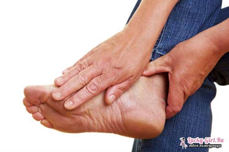 Что такое полинейропатия нижних конечностей?