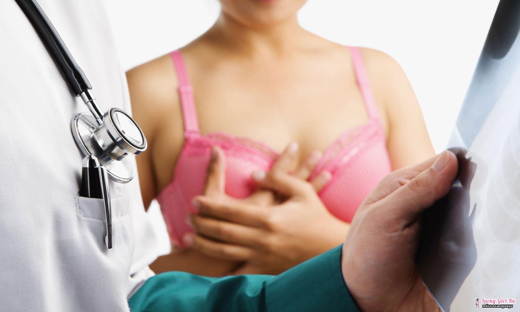 Кальциноз, кальцинаты в молочной железе  что это такое и что с ними делать?