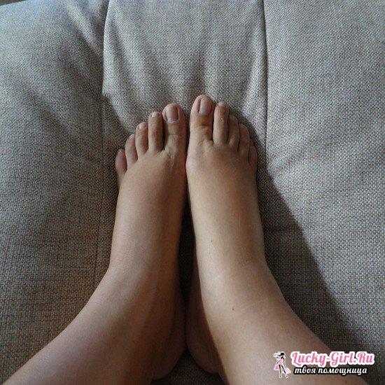 Отекают ноги в щиколотках: причины и меры профилактики