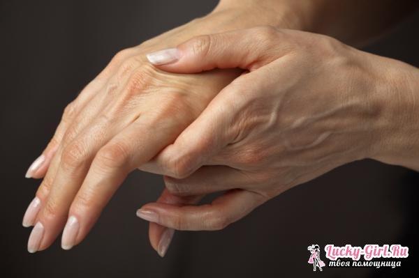 Отчего болят суставы пальцев рук? Как избавиться от болей в суставах народными средствами?