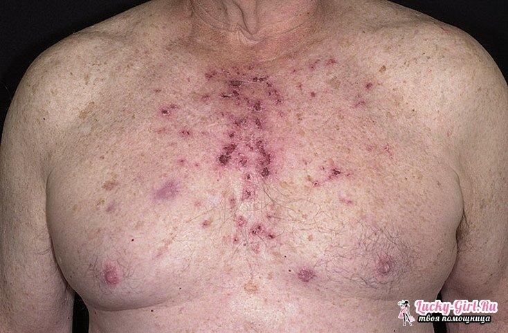 Кератоз кожи. Симптомы, лечение и возможные последствия кератоза