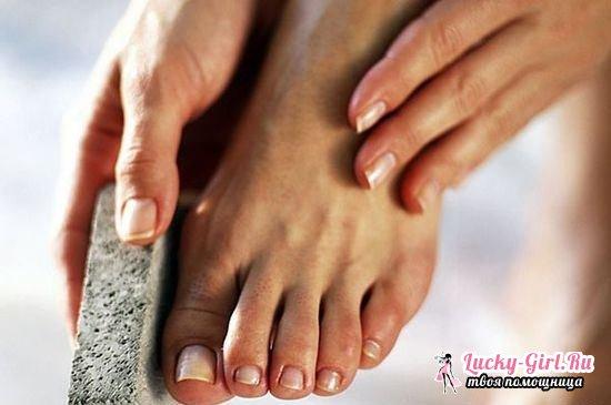 Мозоли на пальцах ног: лечение народными средствами в домашних условиях