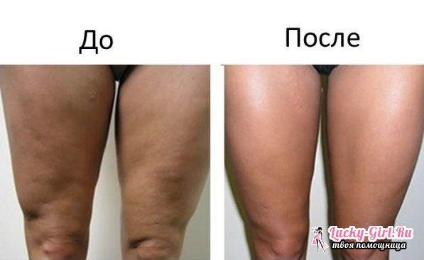 Как подтянуть кожу на ногах каждым разом пощипывания
