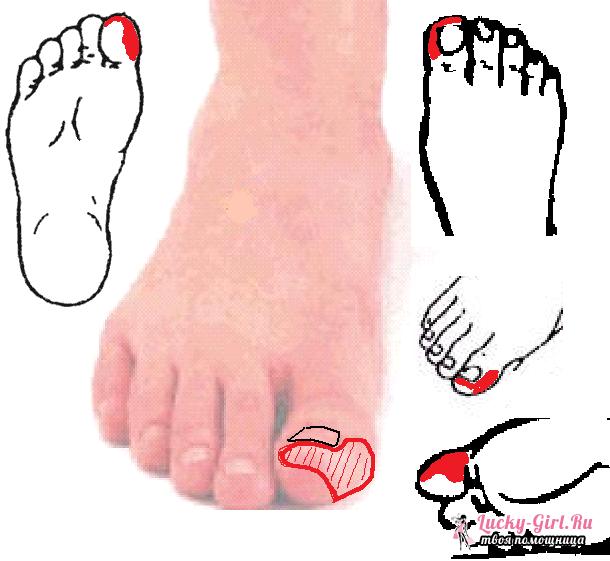 Онемение участка кожи на ноге склероза, синдрома Рейно
