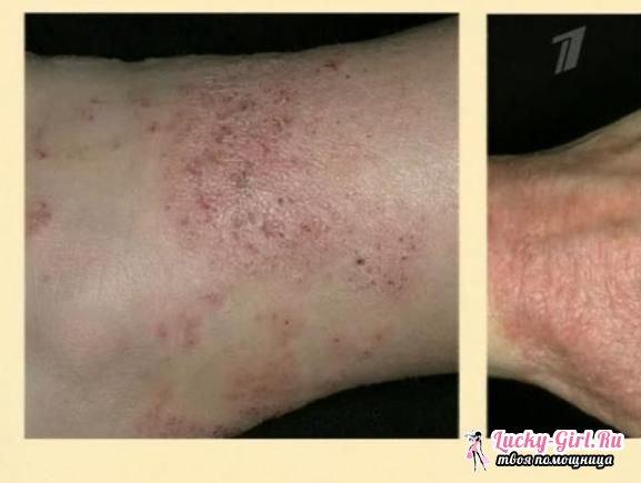 Почему чешется кожа на ногах неподходящая косметика для