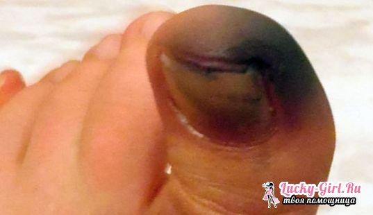 Потемнение кожи на ногах которые предназначены