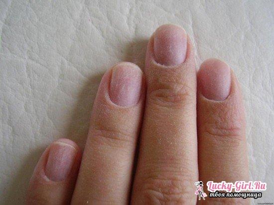Вреден ли шеллак для ногтей: особенности нанесения покрытия, его преимущества и недостатки