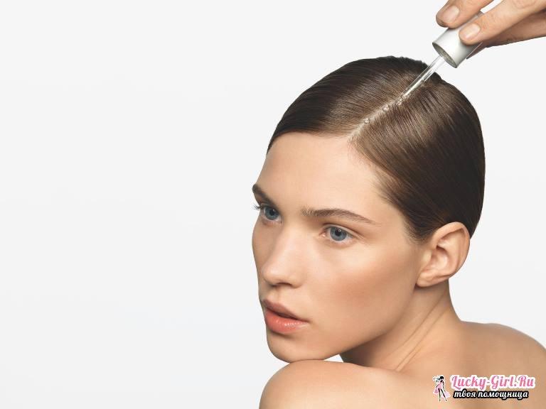 Причины выпадения волос у девушек. Выпадение волос: лечение