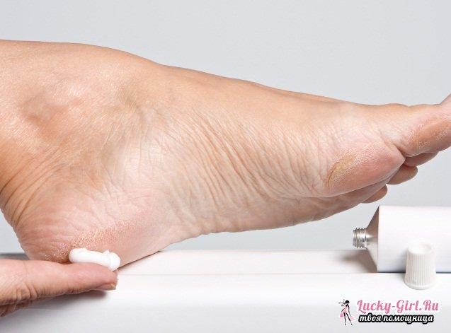 Народное средство от мозолей на пальцах ног